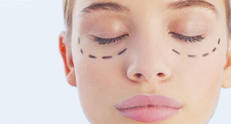 Que arreglar las bolsas en los ojos después de biorevitalizatsii