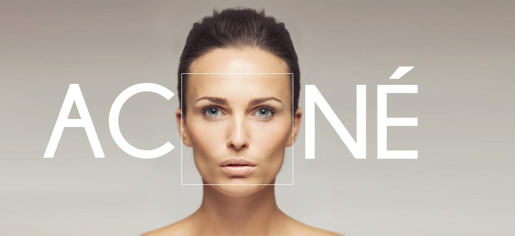 Acne-SLIDER