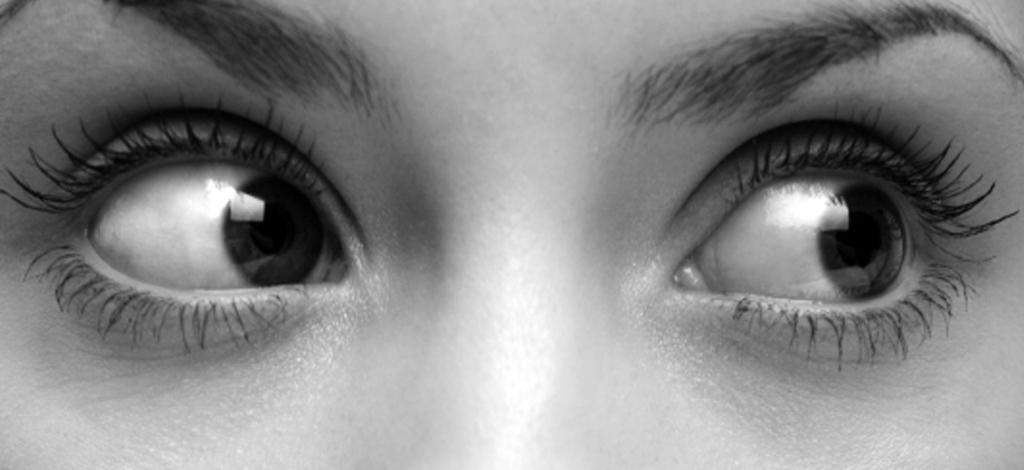 Acne-INT