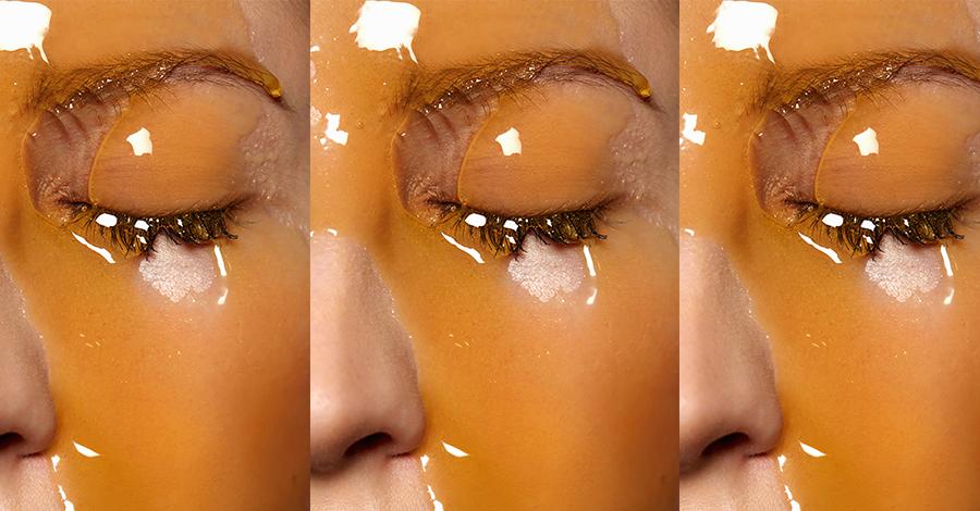 Receta contra el acné