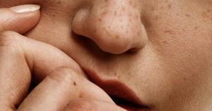 Mujer pecas uñas