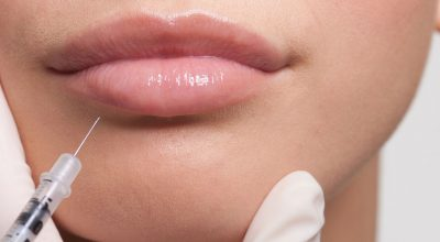 Labios-forever-young_principal