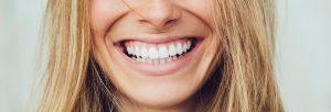 sonrisa blanca